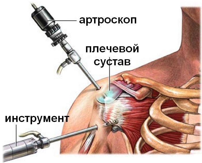 как укрепить связки при привычном вывихе плечевого сустава.