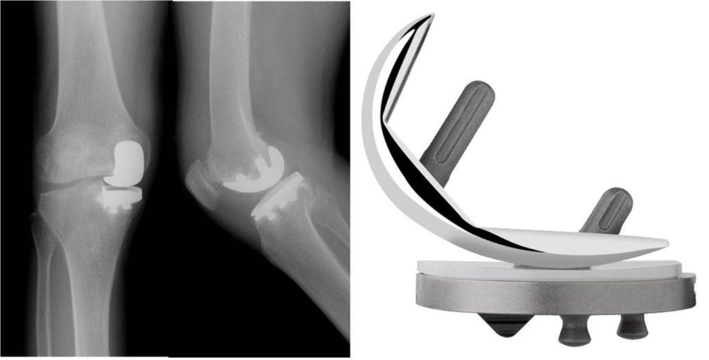одномыщелковый протез колена