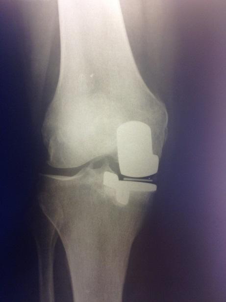 одномыщелковое эндопротезирование колена