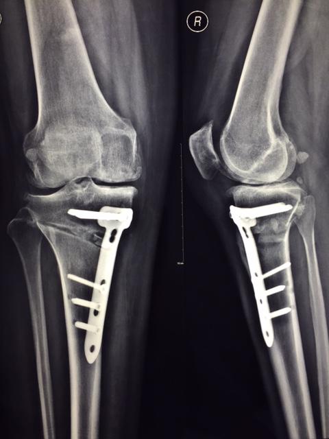 Корректирующая операция коленного сустава мрт коленного сустава г.видное