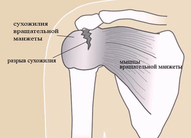 Разрыв связок плечевого сустава операция крючки цена реабилитация после артроскопии коленного сустава в германии
