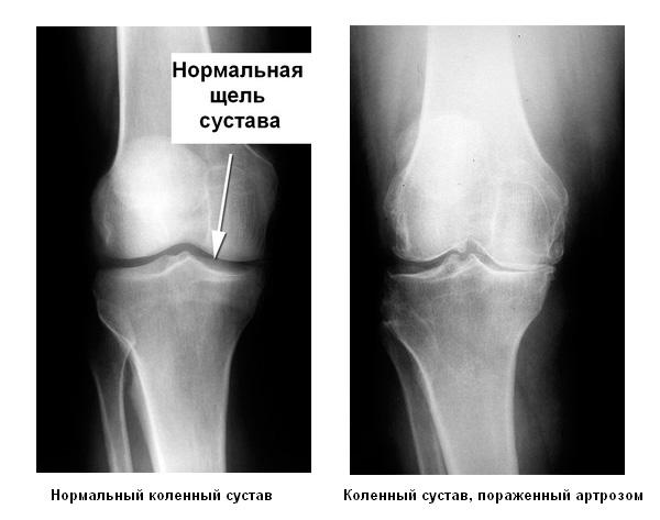 Артроз коленного сустава, артроз колена