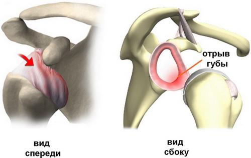 Лечение травматических повреждений плечевых суставов физические упражнения при гонартрозе коленного сустава