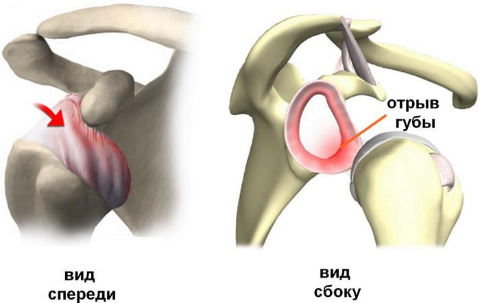 Вывих плечевого сустава.симптомы боль суставов пальцев рук