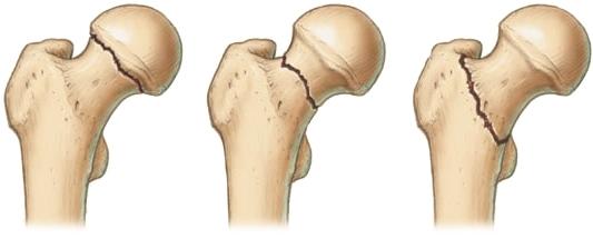 Переломы шейки бедра и вертельной области. Рентгенограмма шейки бедра.