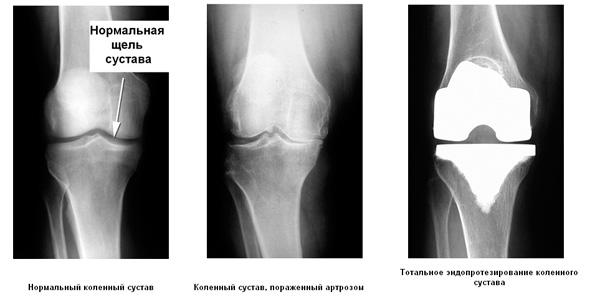 Эндопротезирование коленный сустав пражнения на развитие суставов