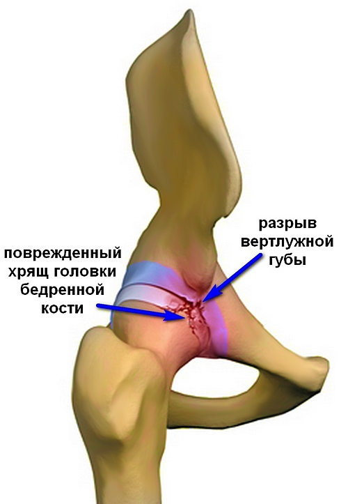 Тазобедренный сустав травмы острый артрит голеностопного сустава причины прогноз лечение