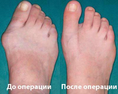 до и после операции на косточке