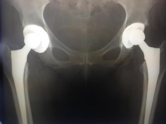 Эндопротез тазобедренного сустава производство сша как проверить суставы ног
